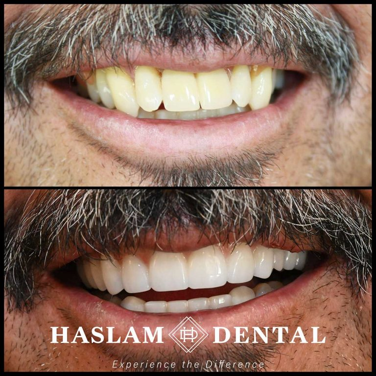 before and after photos of teeth with all on 4 dental implants by haslam dental, a dentist office in ogden utah