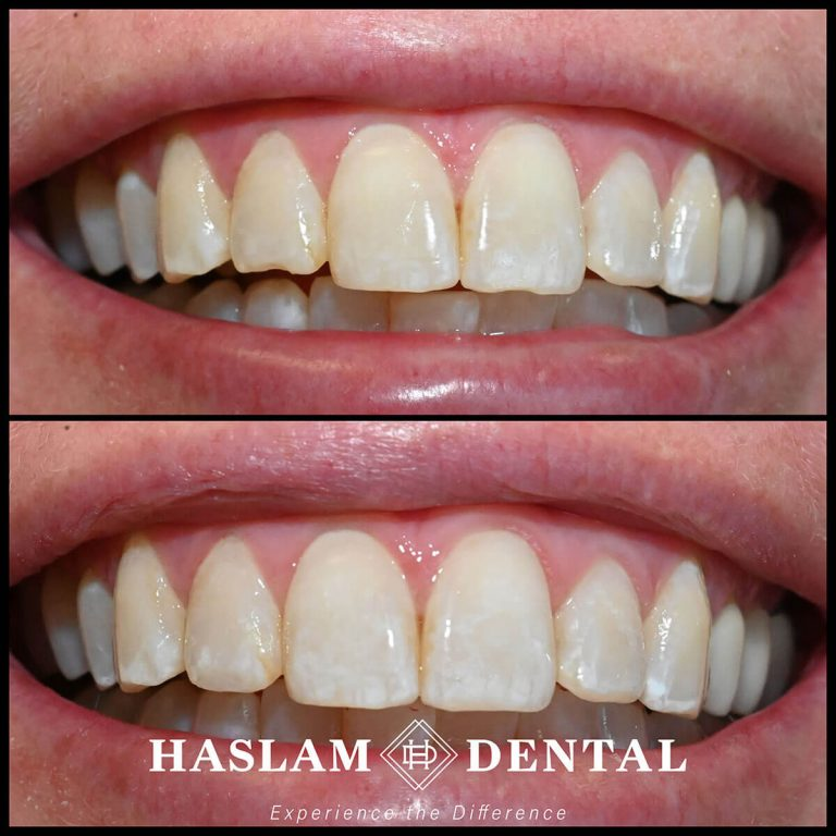 before and after photos of teeth with dental bonding applied by haslam dental, a dentist office in ogden utah